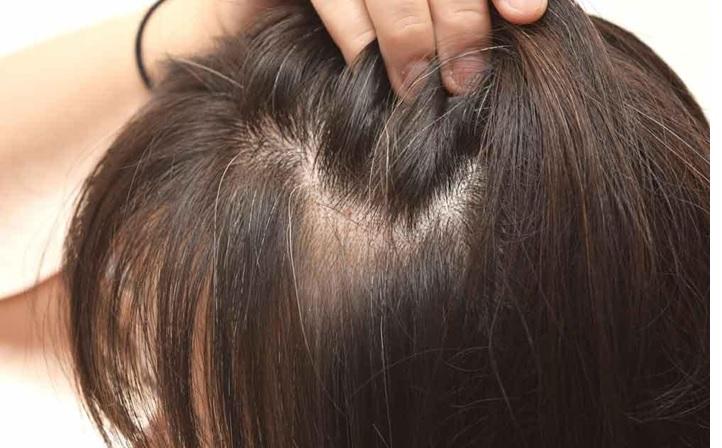 کراتینه مو موهای شکننده و نازک 1